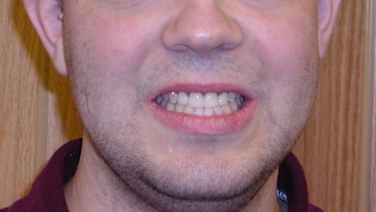 how to fix tooth erosion
