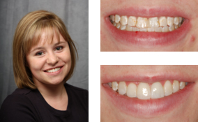 Cosmetic Bonding by a Dentist in Lawrenceville